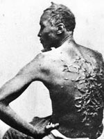 Photo, Slave named Gordon with whip scars, Wounds inflicted December 25, 1862